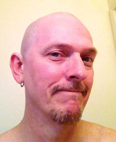 bald01